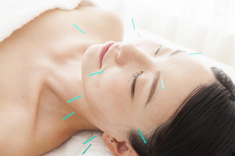 まつおか鍼灸接骨院の5つの特徴